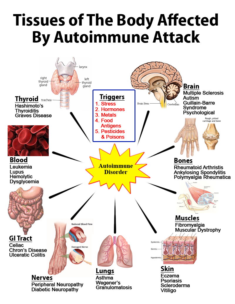 Autoimmune Disorders And Transfer Factors Factor Advance Trifactor Tri Formula Suto Immune Disorder